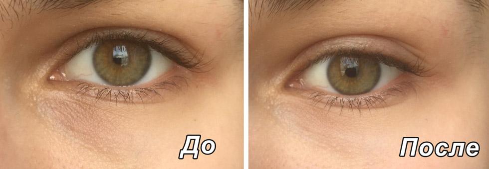 Патчи для глаз эффект до и после